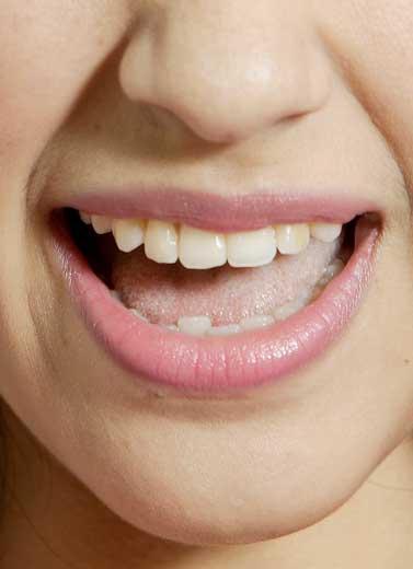 Mau Gigi Sehat? Jangan Makan Ini!