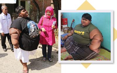 Arya Permana Melawan Obesitas