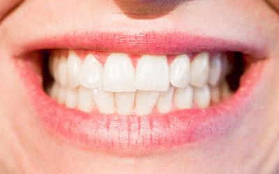4 Langkah Hindari Bau Mulut Selama Berpuasa