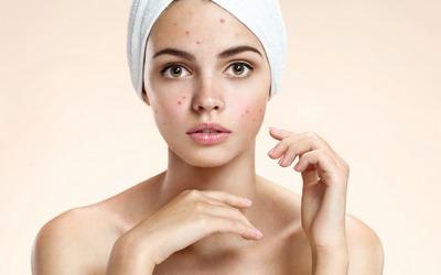 Tip Mengatasi Jerawat Batu dan Cara Menyiasatinya dengan MakeUp