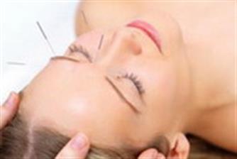 Akupunktur untuk Perawatan Prapernikahan