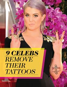 Celebs Remove Their Tattoos